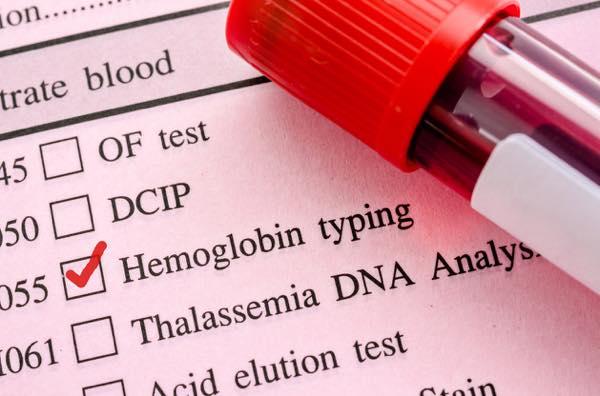 貧血解消青汁ヘモグロビン1